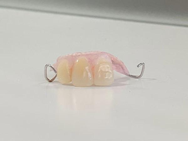 前歯がグラグラで、インプラントを勧められた患者さん(40代女性)